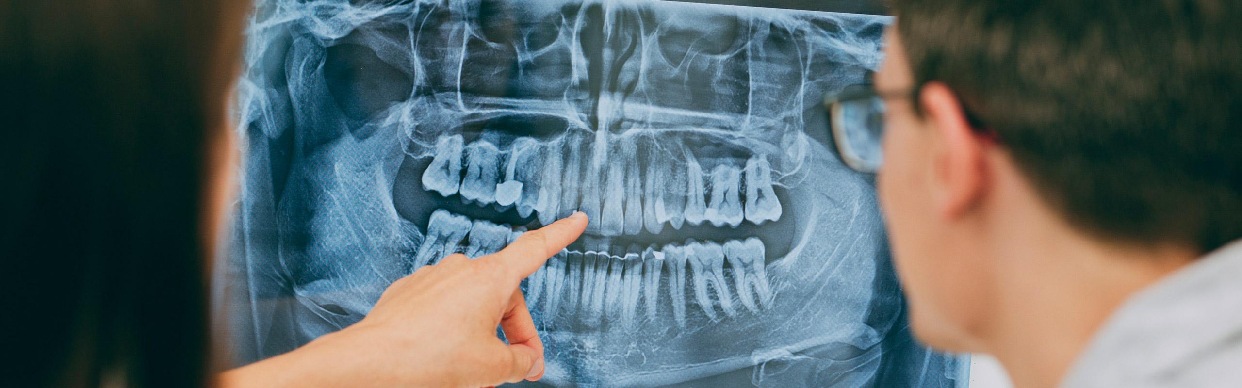 Zahnärzte aus Bonn-Oberkassel planen Behandlung am Röntgenbild.
