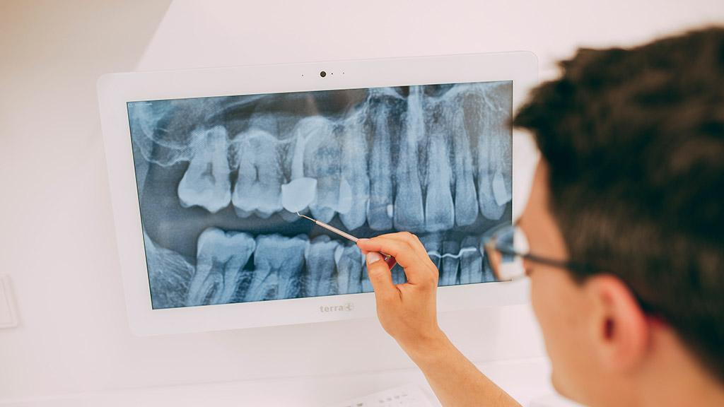 Dr. Gero Winkler untersucht Röntgenbild vor Zahnwurzelbehandlung.